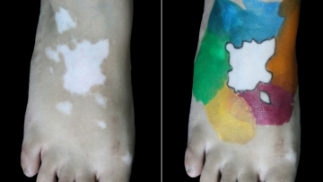 1 percent of the world's population has vitiligo, a condition that causes loss of skin colour.