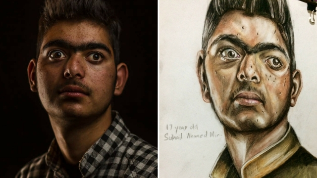 Portrait of 17-year-old pellet gun survivor, Suhail Ahmad.