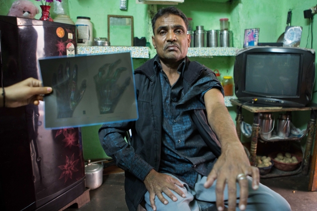 Suresh worked as a manual scavenger for three decades. He developed respiratory problems and was diagnosed with Herpes in 2013. His left hand is partially paralysed.