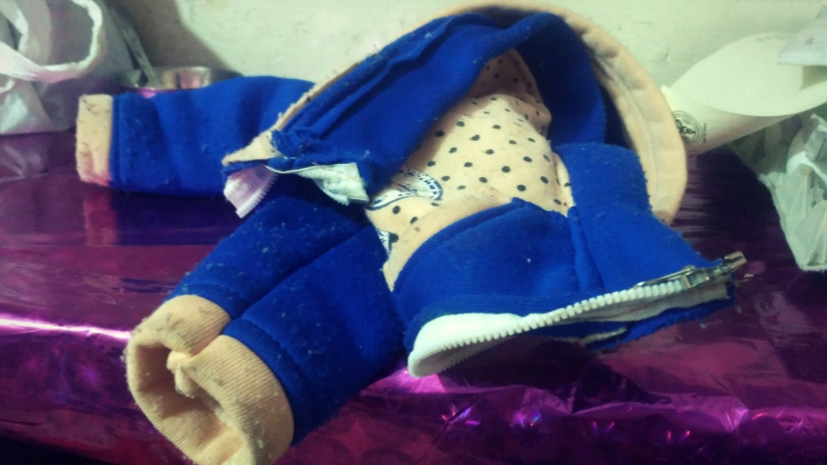 The infant's bandages need to be changed at least 20-25 times a day,