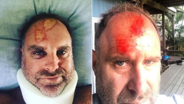 Photos revealing head injuries suffered by Matthew Hayden.