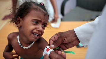 A doctor measures the arm of a malnourished girl at the Aslam Health Center, Hajjah in Yemen.