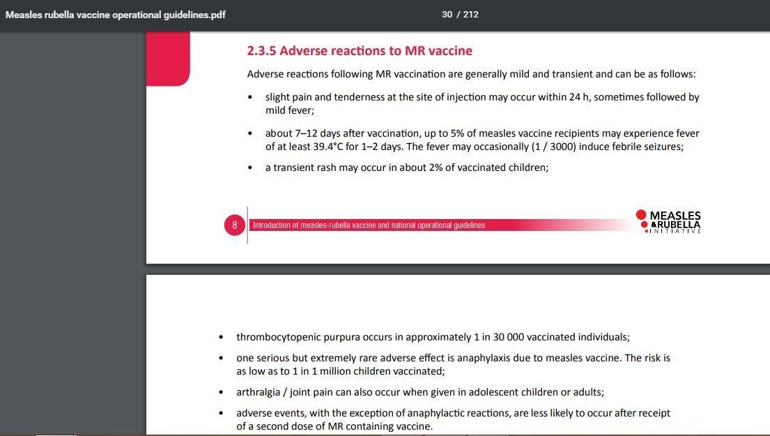 आरोग्य मंत्रालयाद्वारे एमआर-वैक्सीनच्या ऑपरेशनल दिशानिर्देशानुसार, लसीकरणानंतर प्रतिकूल प्रतिक्रिया सामान्यतः सौम्य असतात.