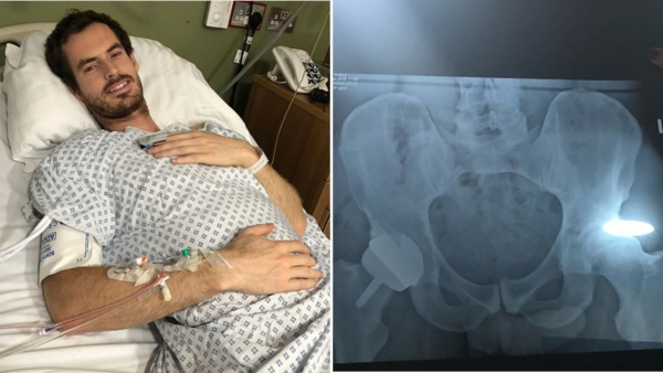 Three-time major winner Andy Murray shared pictures after undergoing a second surgery on his hip in London on 28 January.