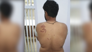Tihar Prisoner, Nabbir has alleged that the jail Superintendent subjected him to inhuman treatment, deprived him of food and branded the 'Om' symbol on his shoulder.