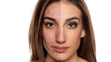 How much do you think you know about acne? Take this FitQuiz to find out.