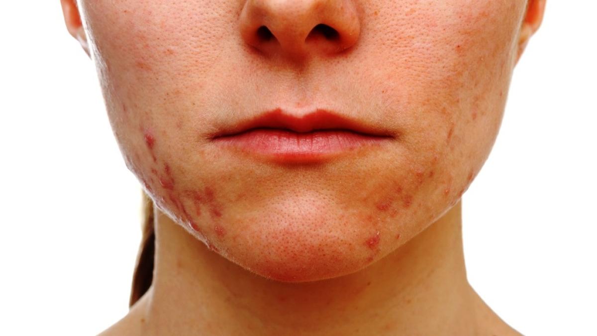 इन प्रदूषकों के उच्च स्तर पर लंबे समय तक संपर्क त्वचा पर गहरा नकारात्मक प्रभाव डाल सकता है।