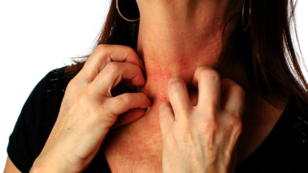 Skin Diseases More Prevalent Than Thought: Study