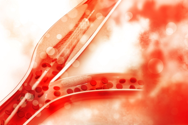 Stents are small expandable tubes used to treat narrowed or weakened arteries in the body.
