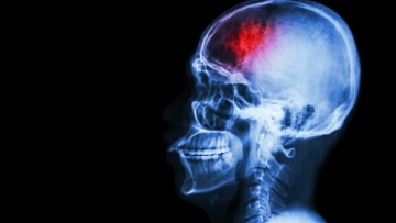 From nausea and dizziness to paralysis, all of these are symptoms of a stroke. Here's how you address them.