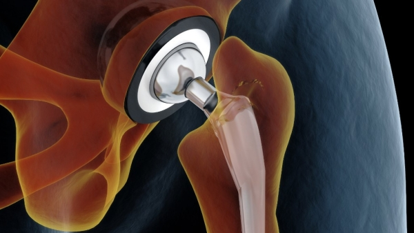 Hip implant or replacement surgeries are done to replace the hip joint with a prosthetic joint.