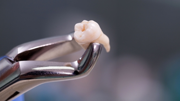 Multiple studies have suggested an association between periodontal disease and tooth loss with hypertension.