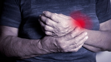 Symptoms of Rheumatoid Arthritis usually start between the ages of 40 and 60 years.
