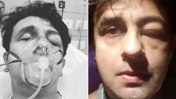 Singer Sonu Nigam with a swollen face after reacting to a food allergy.