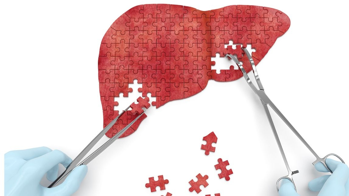Physical Activities May Cut Risk of Death From Liver Disease