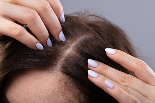 Ayurveda Remedies For Hair Loss and Dandruff: Our quest for pretty hair often leads to frustration and unhappiness.