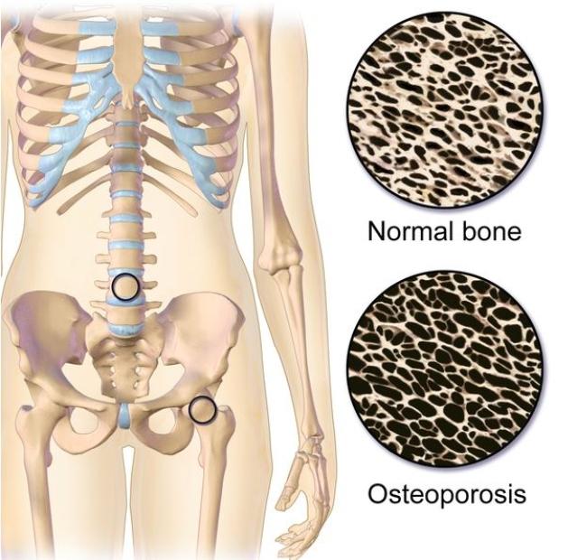 हड्डियों का घनत्व (डेंसिटी) कम हो जाता है.