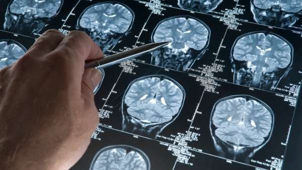 एक अध्ययन में कहा गया है कि मस्तिष्क में अधिक कोशिकाएं ब्रेन कैंसर का खतरा बढ़ाती हैं