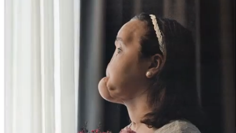 Nat Geo Features the Story of Youngest Face Transplant Recipient of the US in New Issue