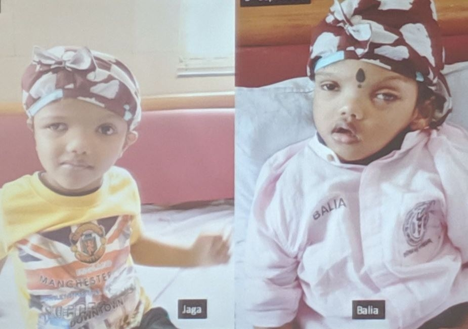 Conjoined Twins Separated at AIIMS to Return Home to Odisha