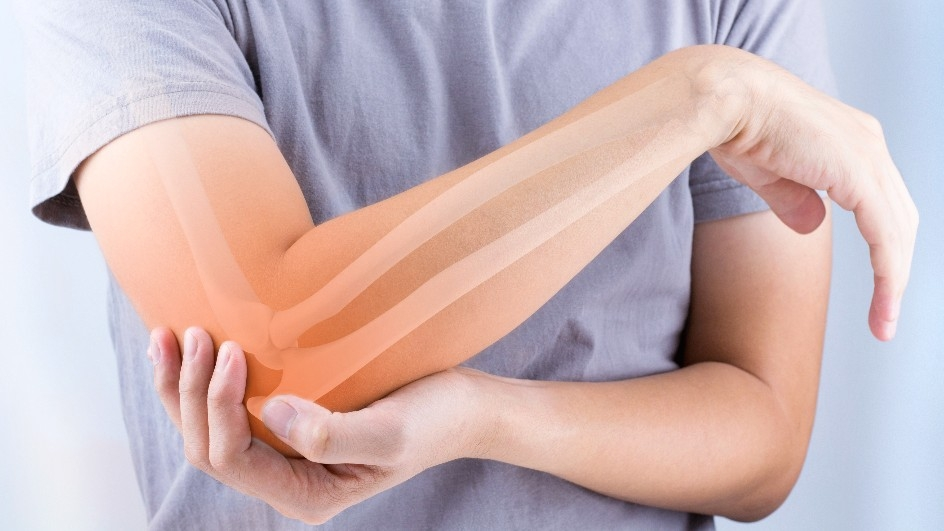 FIT Quiz: How Can You Best Take Care of Your Bones?