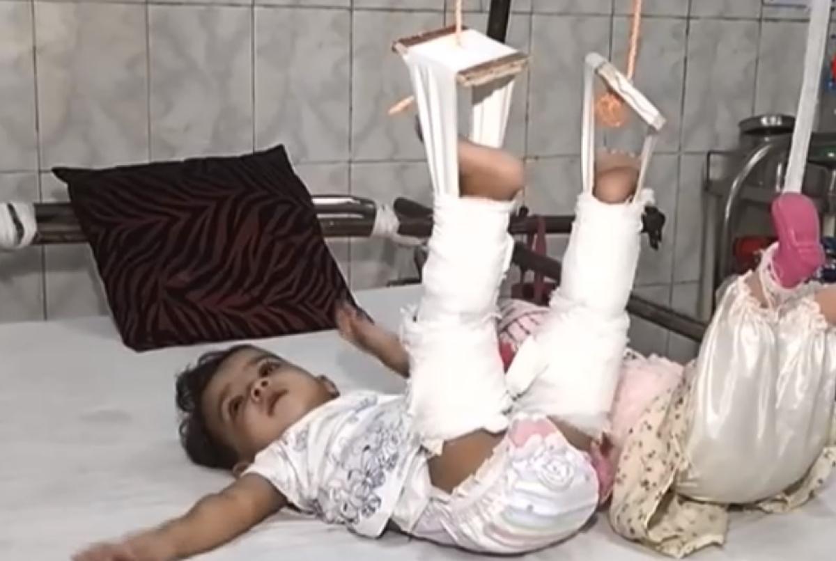 CHILD Under treatment